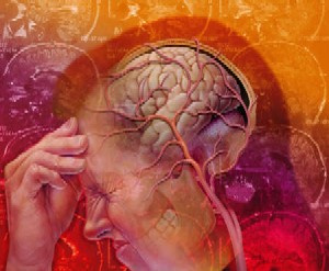 Migraine-Headache2
